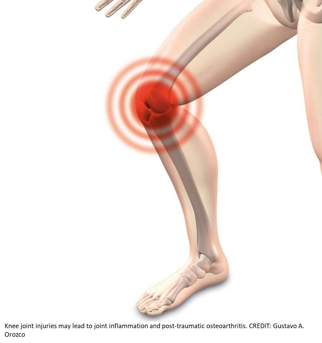 Why knee joint injury leads to osteoarthritis