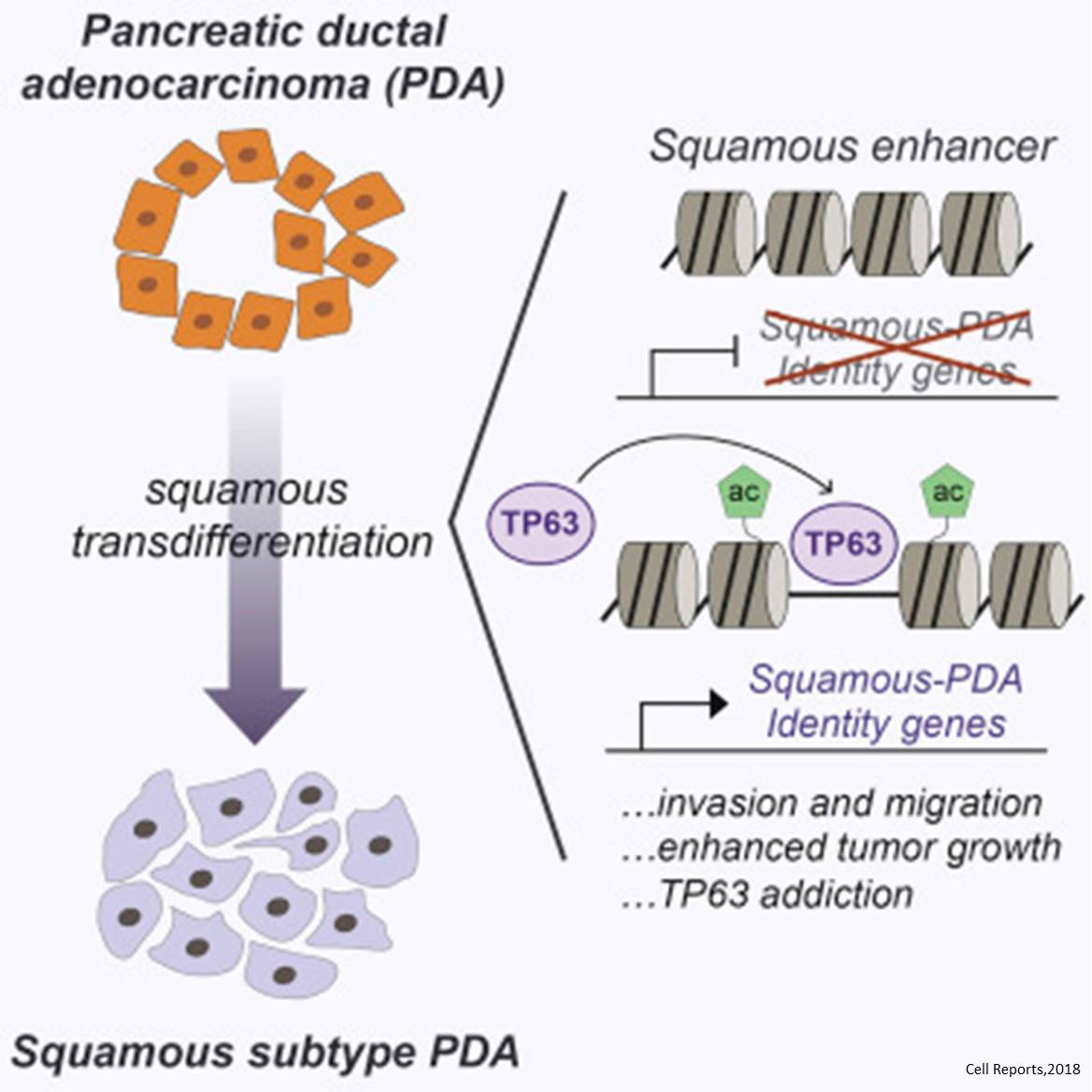 Expression of a specific protein detrimental to early death in pancreatic cancer
