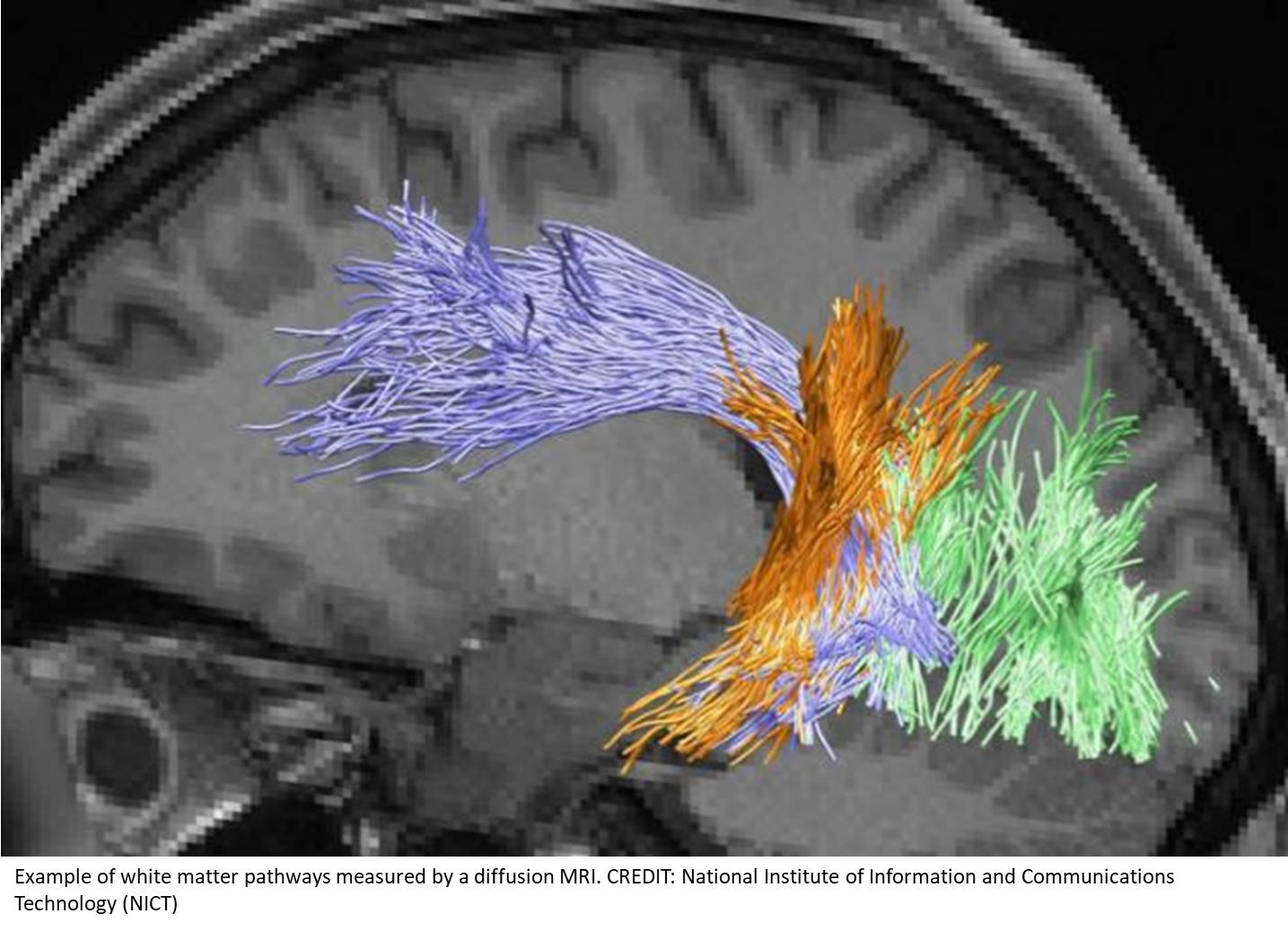 White matter pathway and individual variability in human stereoacuity