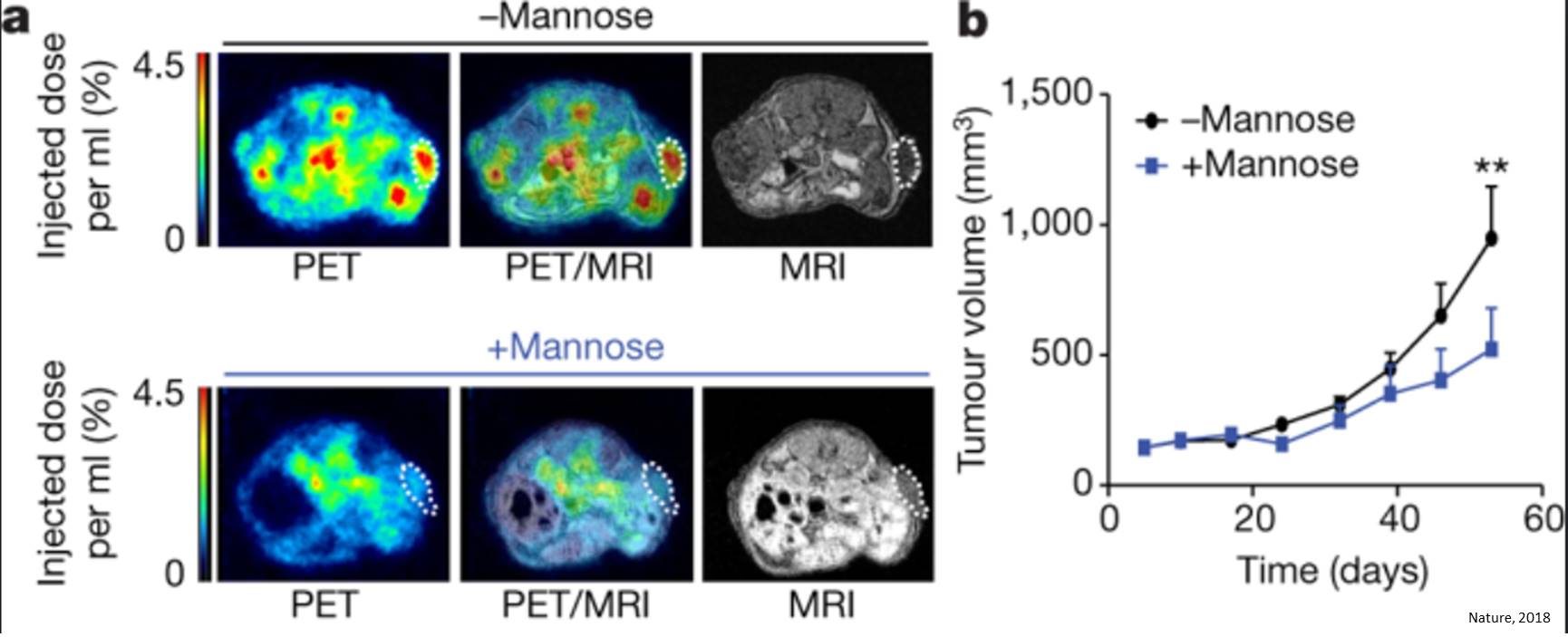 Mannose impairs tumor growth and enhances chemotherapy