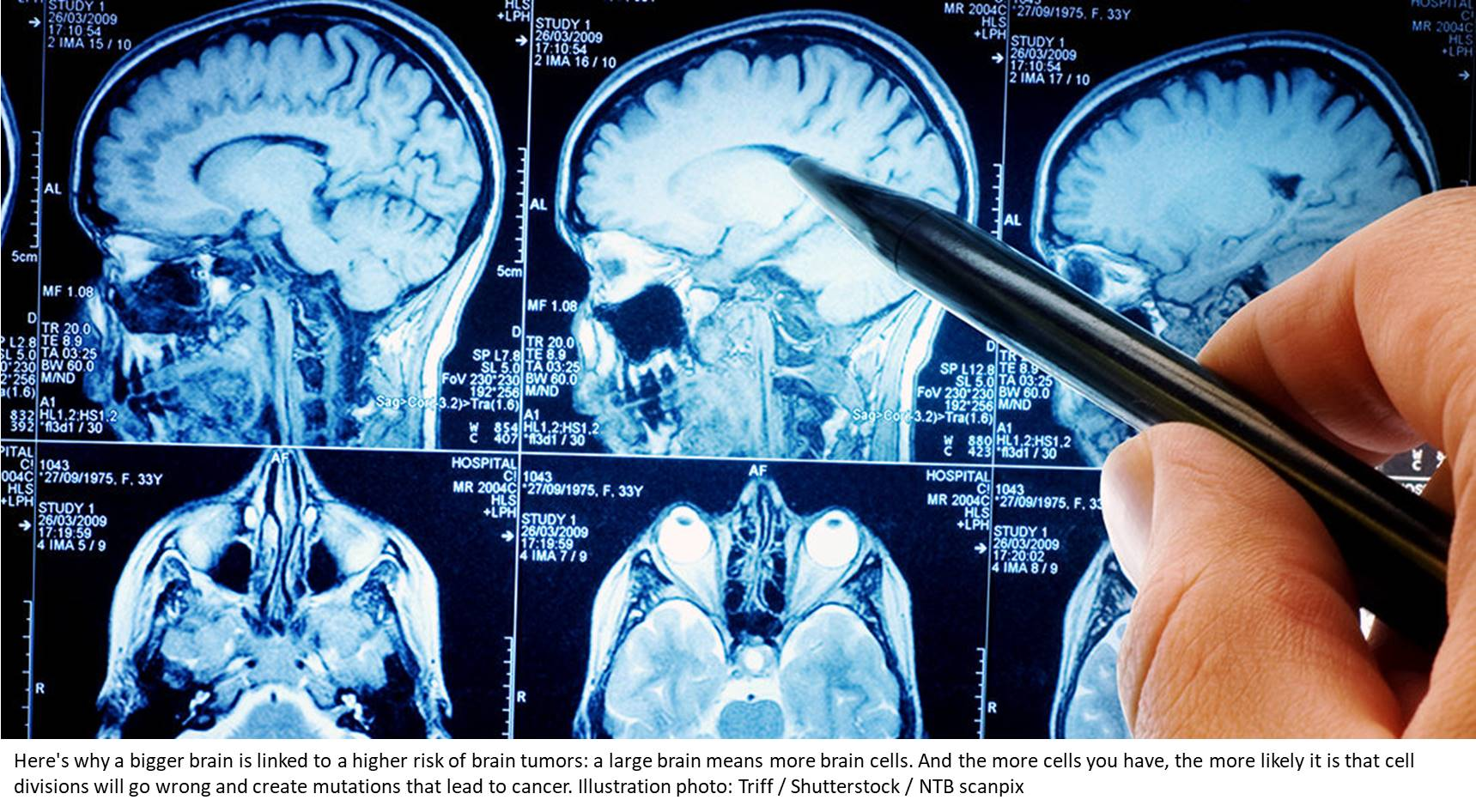The larger the brain, the greater the risk of a brain tumor