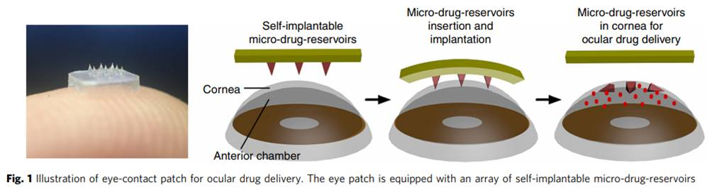 A 'contact lens' patch for efficient and controlled ocular drug delivery