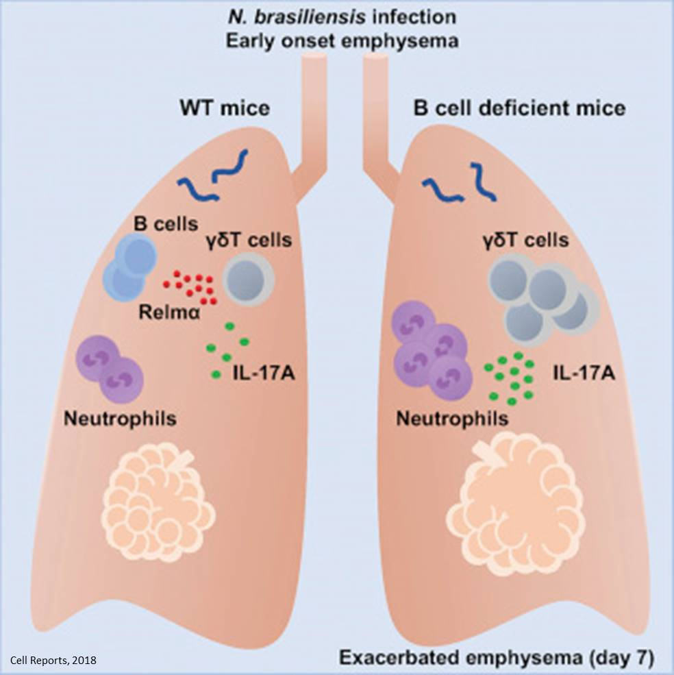 Protein involved in slowing the progression of emphysema identified!