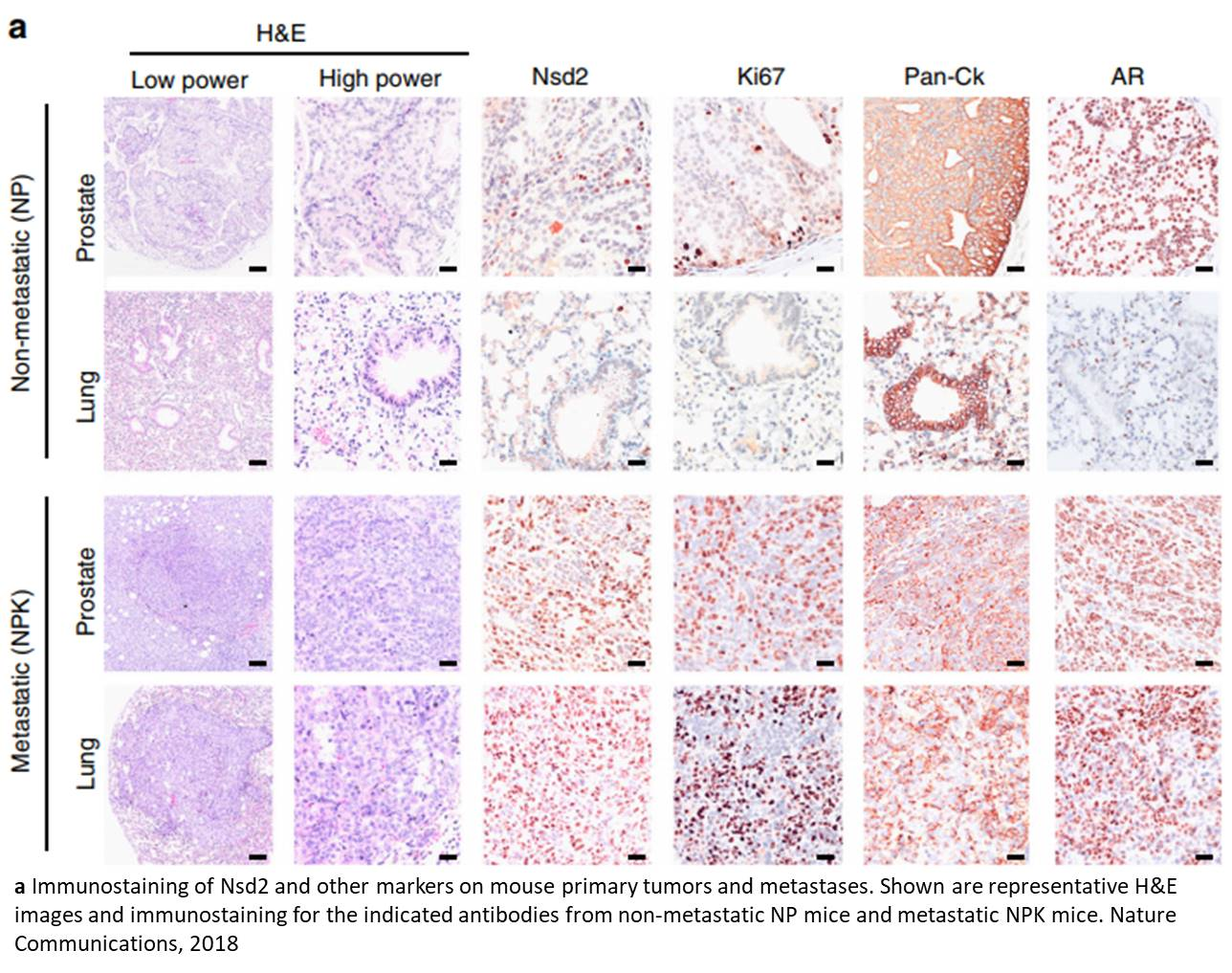 Epigenetic driver of metastatic prostate cancer progression!