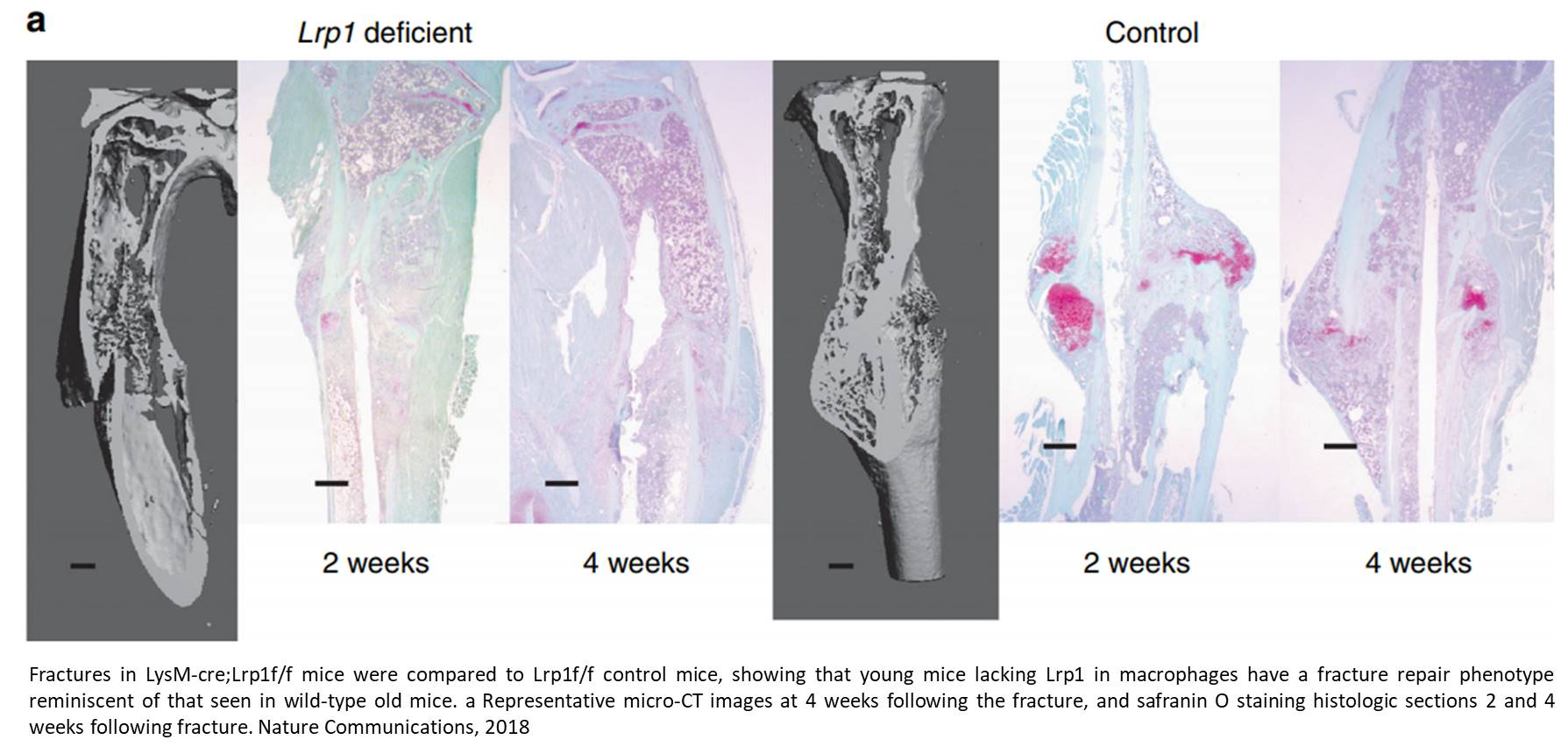 Why young bones repair fractures faster than the old ones?