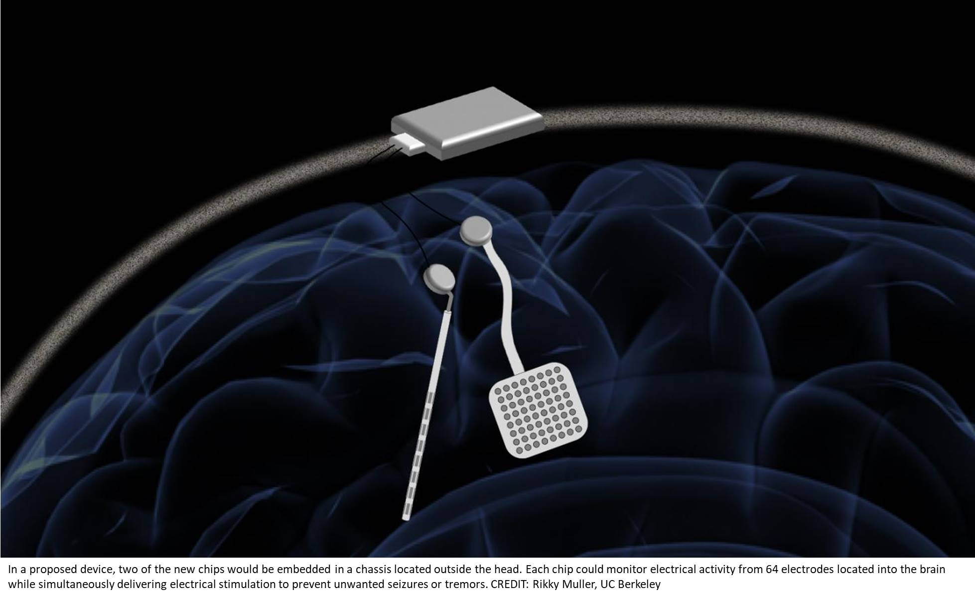 Wireless, 128-channel 'WAND' for closed-loop brain stimulation and recording