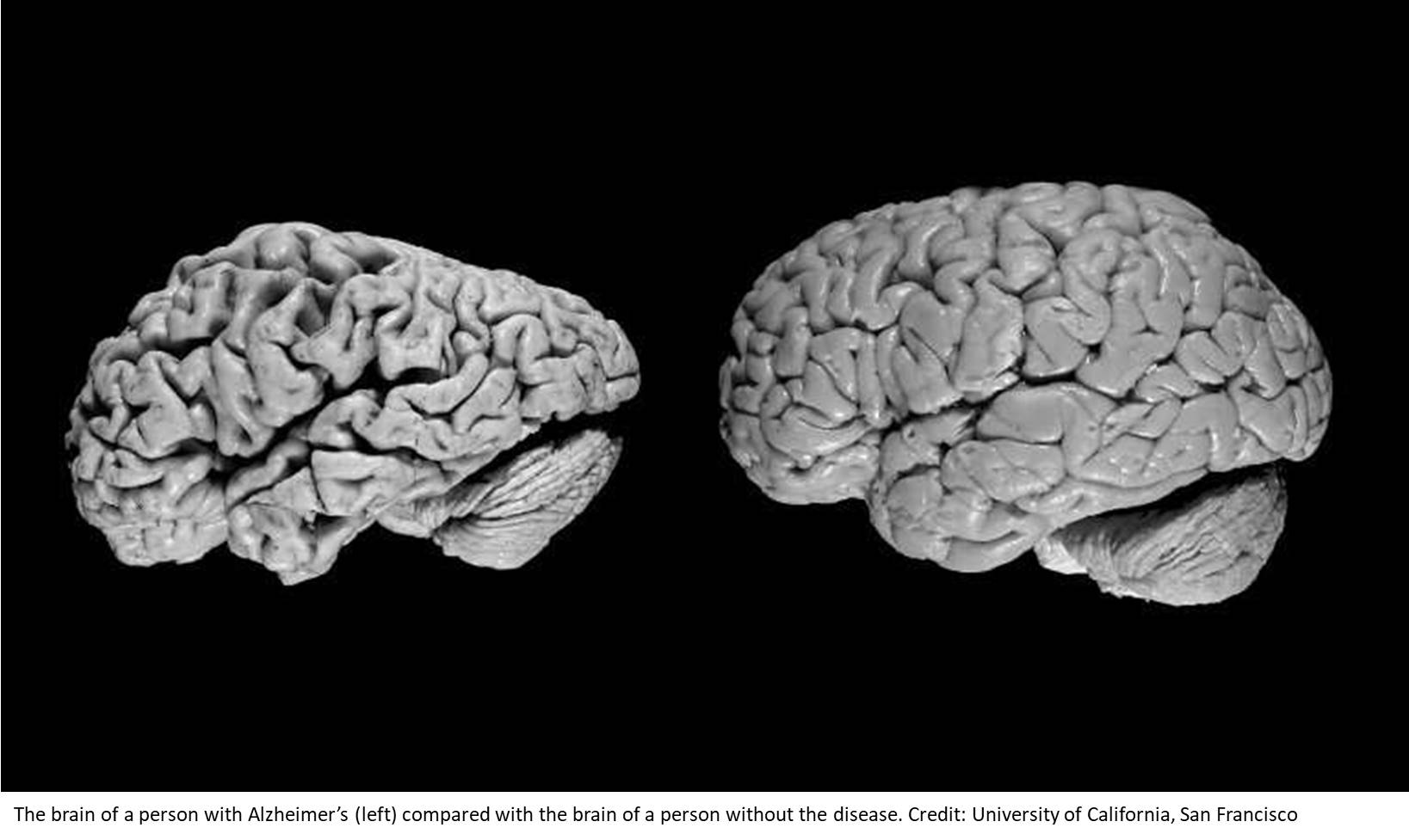 Detecting Alzheimer's disease six months before diagnosis using AI