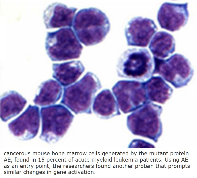 New target for acute myeloid leukemia identified