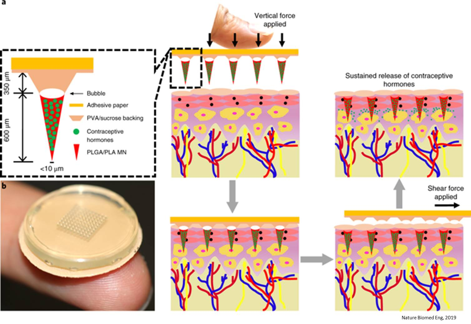 Microneedle, self administered contraceptive patch for the sustained release