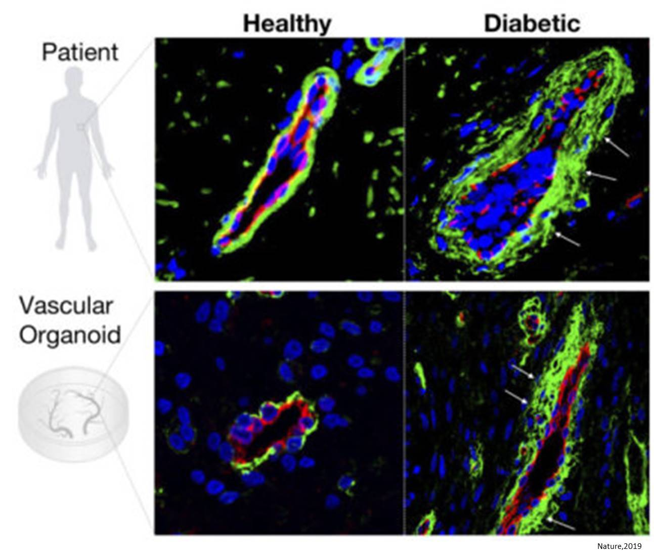 Human blood vessel organoids as a model of diabetic vasculopathy