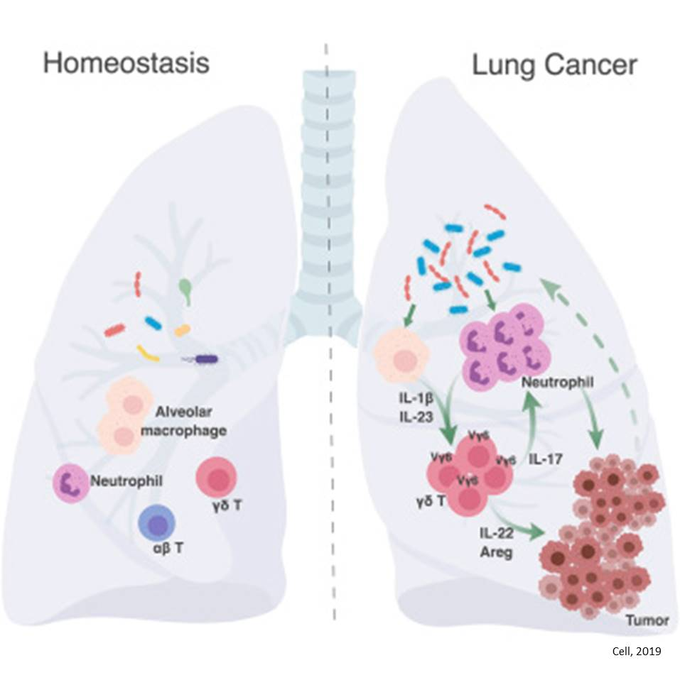 Linking bacteria to lung cancer!