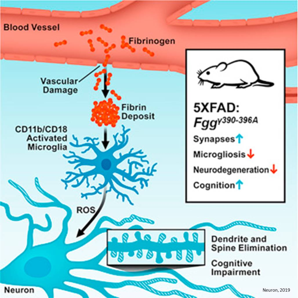 Leaking blood clotting factor may cause cognitive decline in Alzheimer's disease