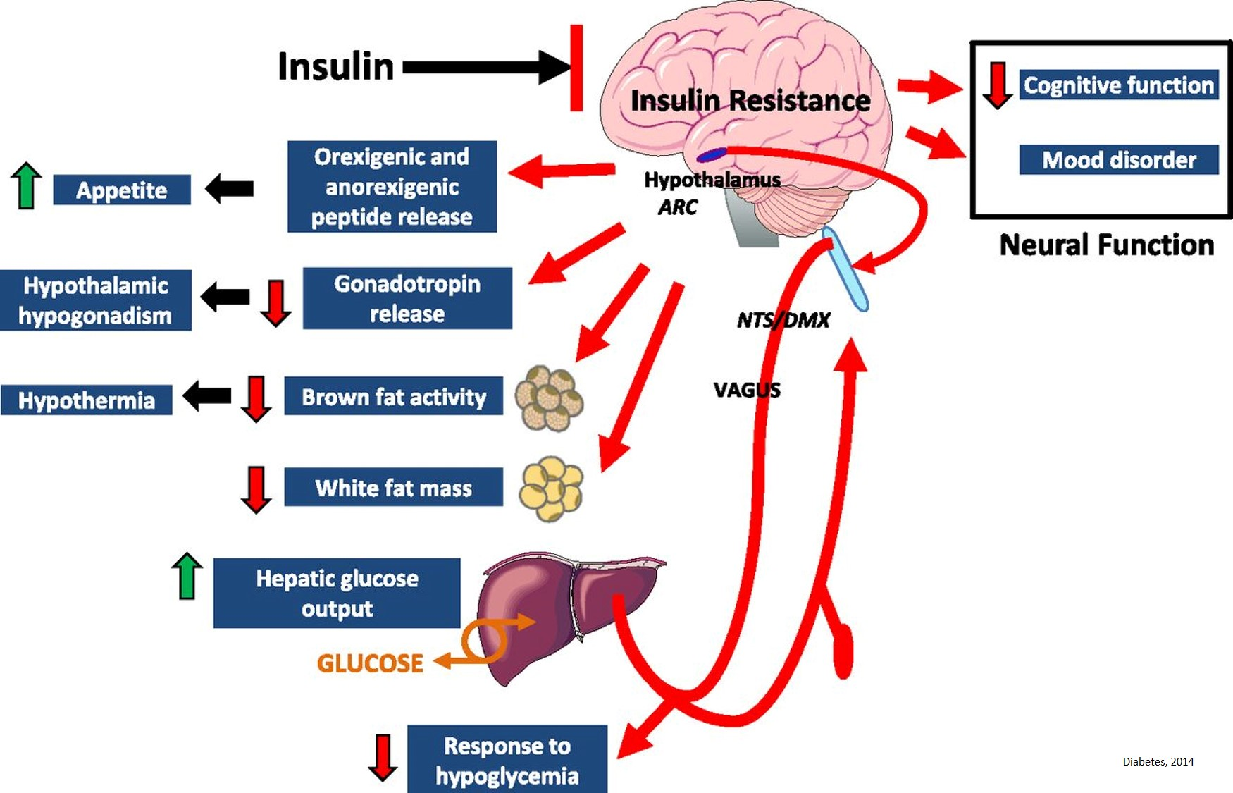 Insulin signaling failures in the brain linked to Alzheimer's disease