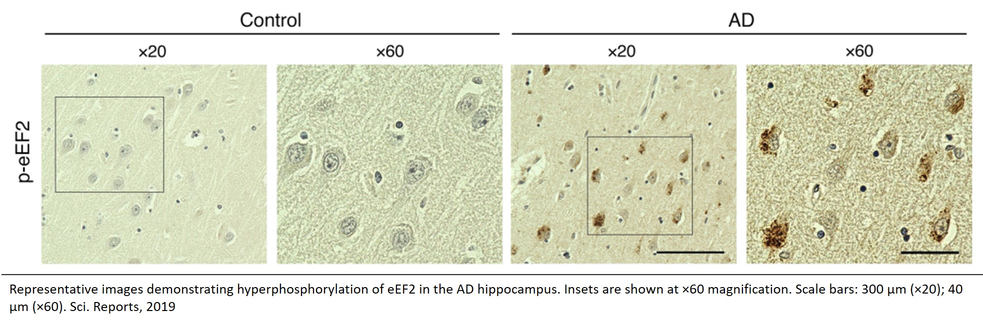 Reducing mRNA translation factor alleviates pathophysiology in Alzheimer's disease model mice