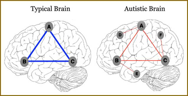 Can brain connectivity be as a biomarker in autism?