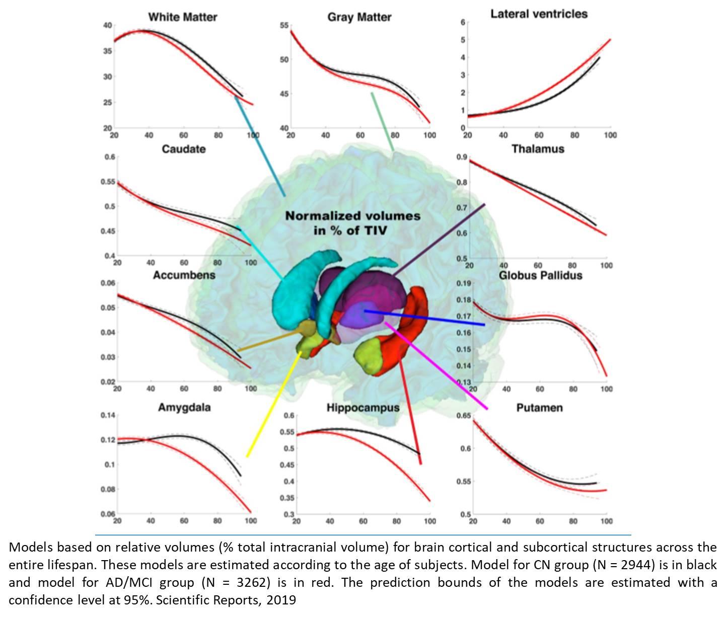Normal vs Alzheimer's aging in brain!