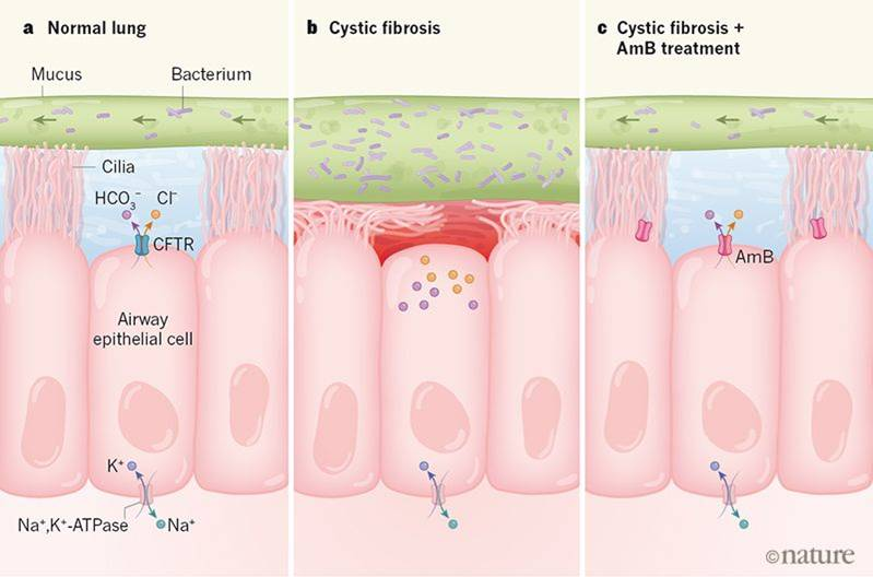 An antifungal non-selective channel drug shows promise for treating cystic fibrosis
