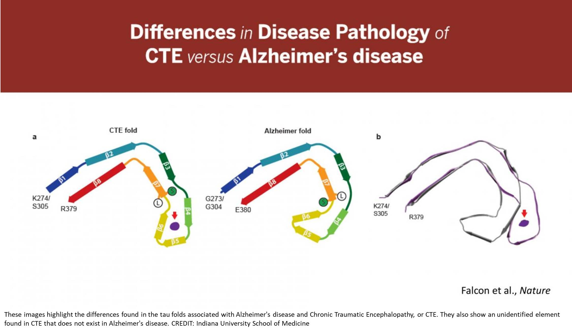 CTE differs from Alzheimer's disease in protein folding