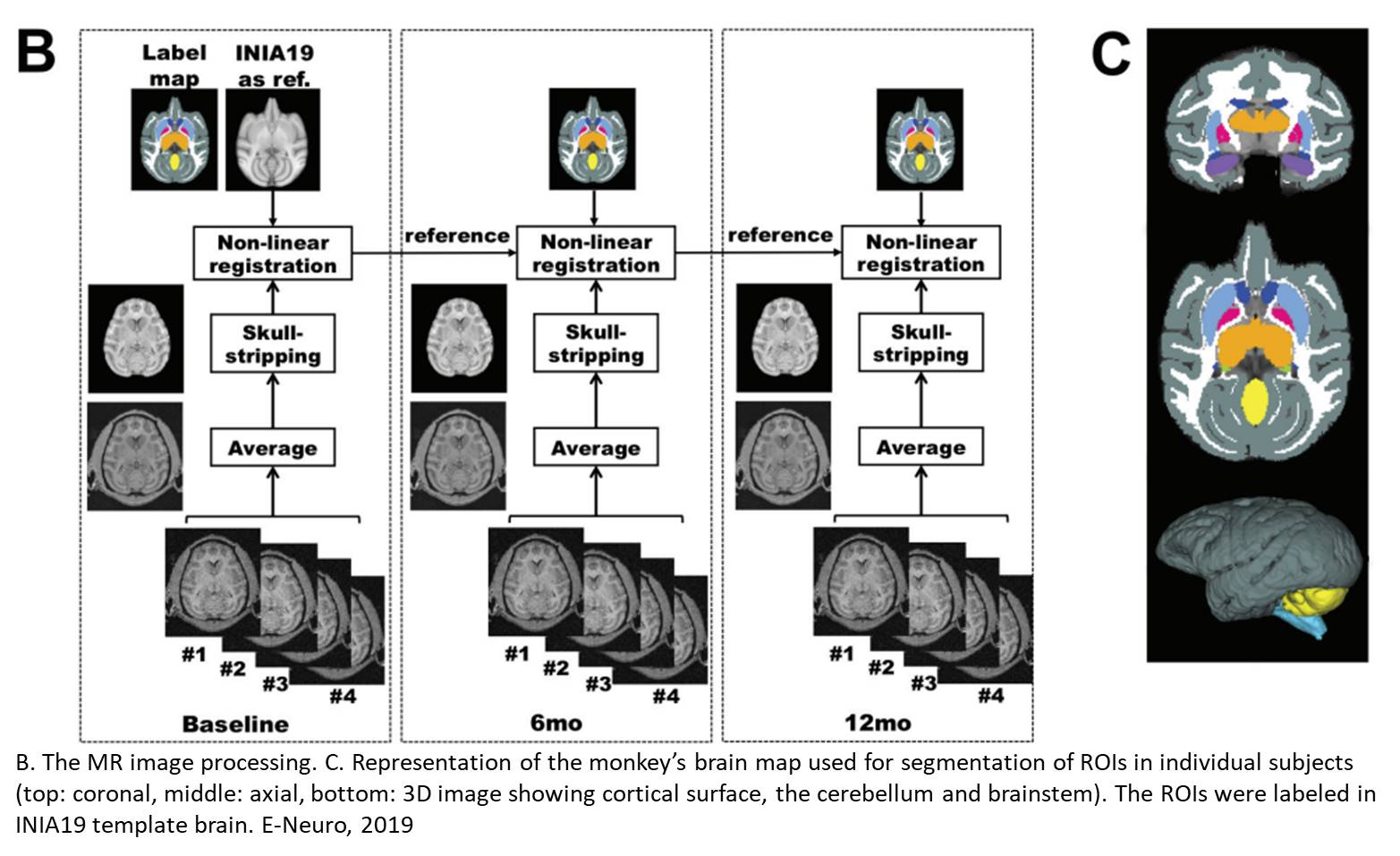 Chronic alcohol drinking slows brain development in adolescent and young adult non-human primates
