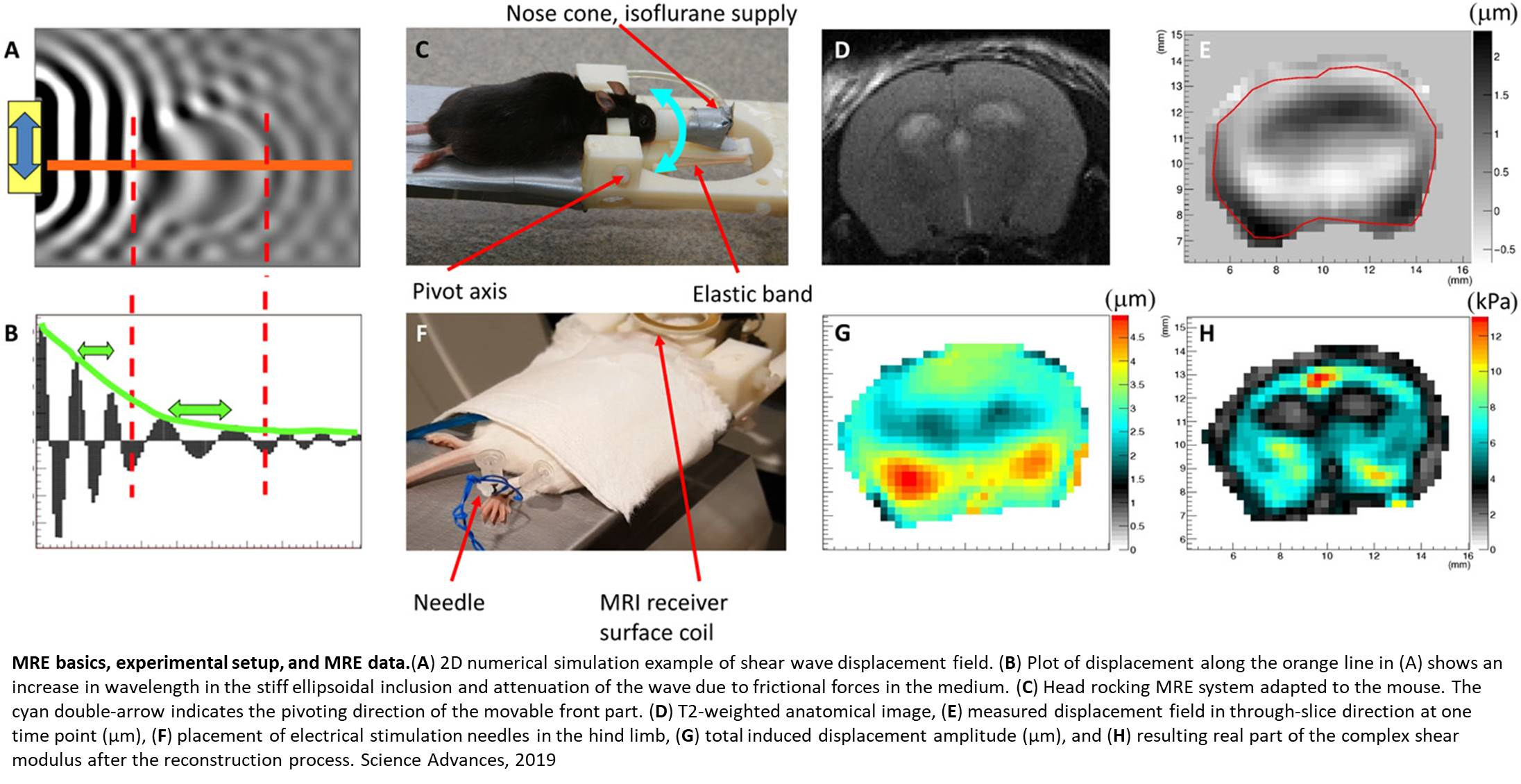 Magnetic resonance elastography (MRE) to measure the brain activity in milliseconds