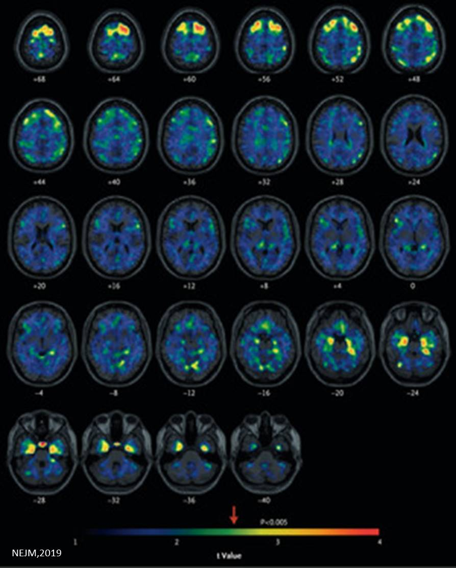 Abnormal tau protein in brains of living former NFL players using PET