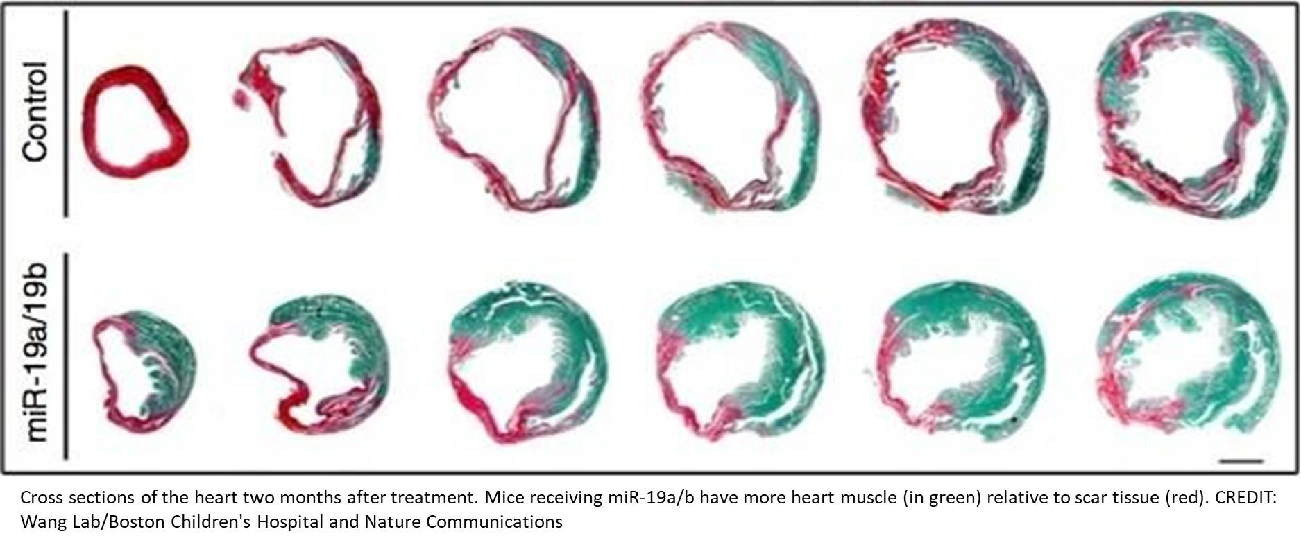 MicroRNAs to protect against heart failure