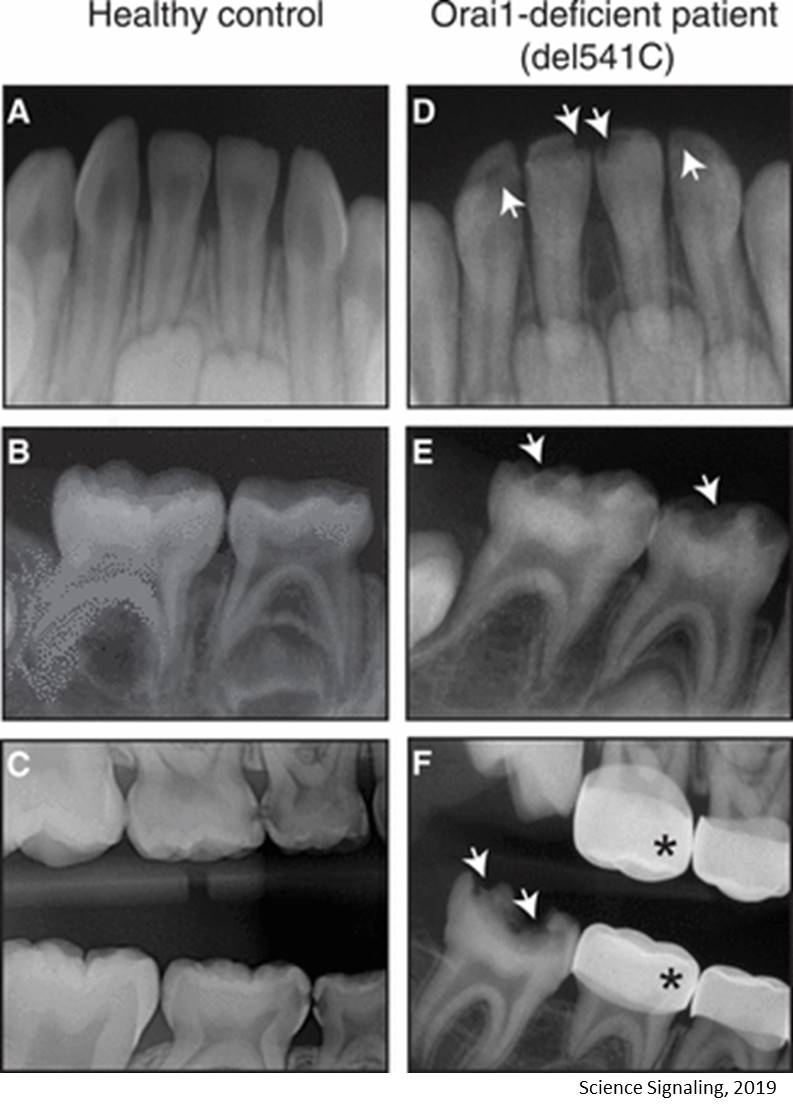 Tooth enamel damage from deficiency of a gene identified!