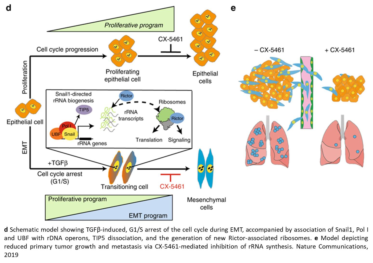 Epithelial to mesenchymal transition (EMT) require ribosomal synthesis in cancer