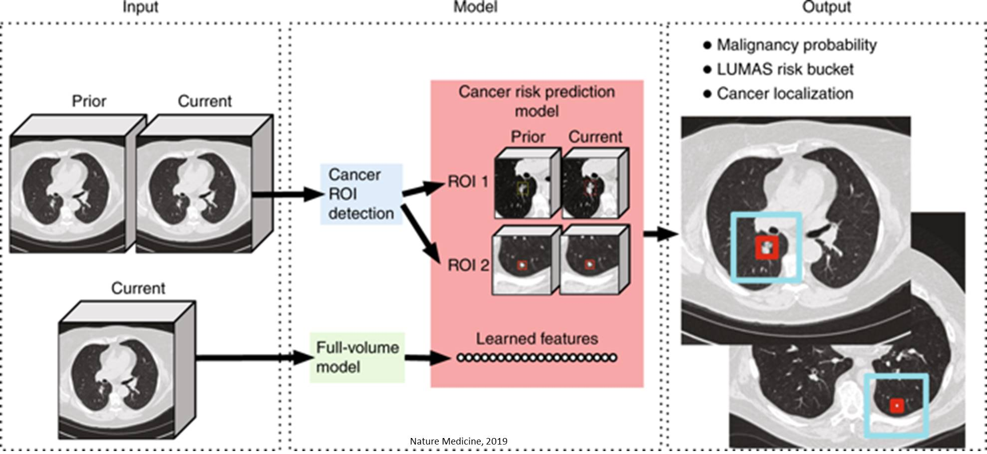 Artificial intelligence system spots lung cancer before radiologists