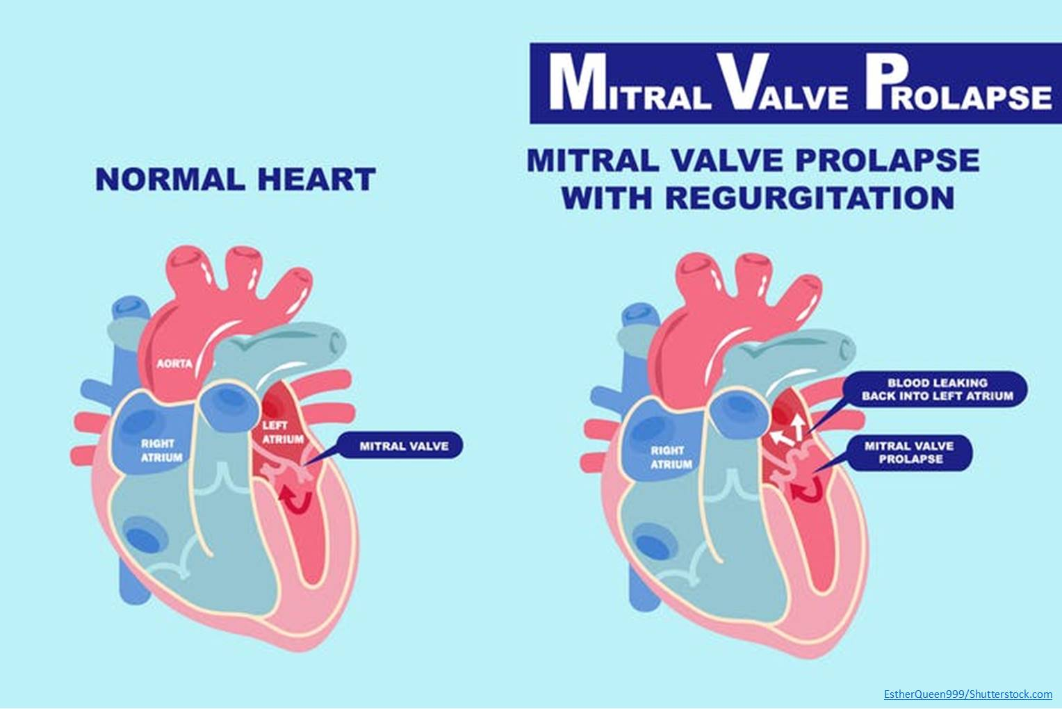 Defects in cilia can cause a common heart valve condition