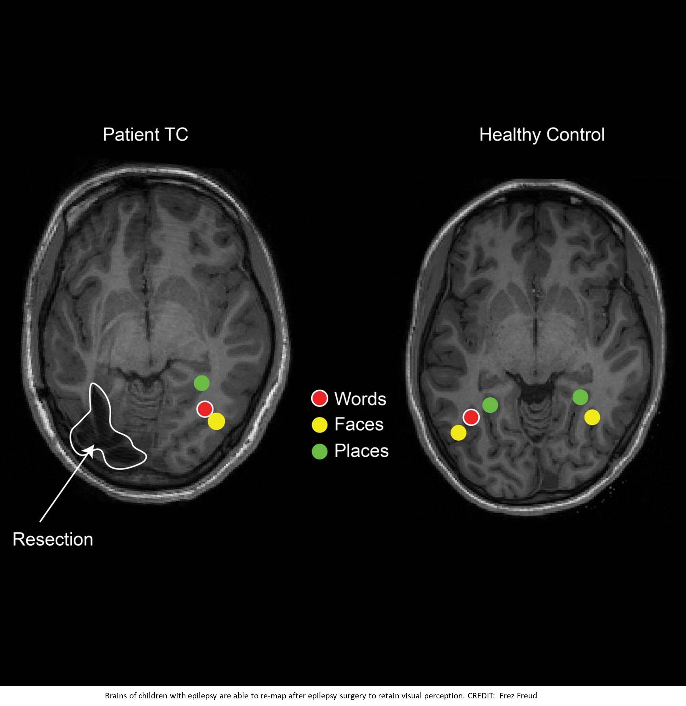 Brain rewiring after surgery children with epilepsy to retain visual perception