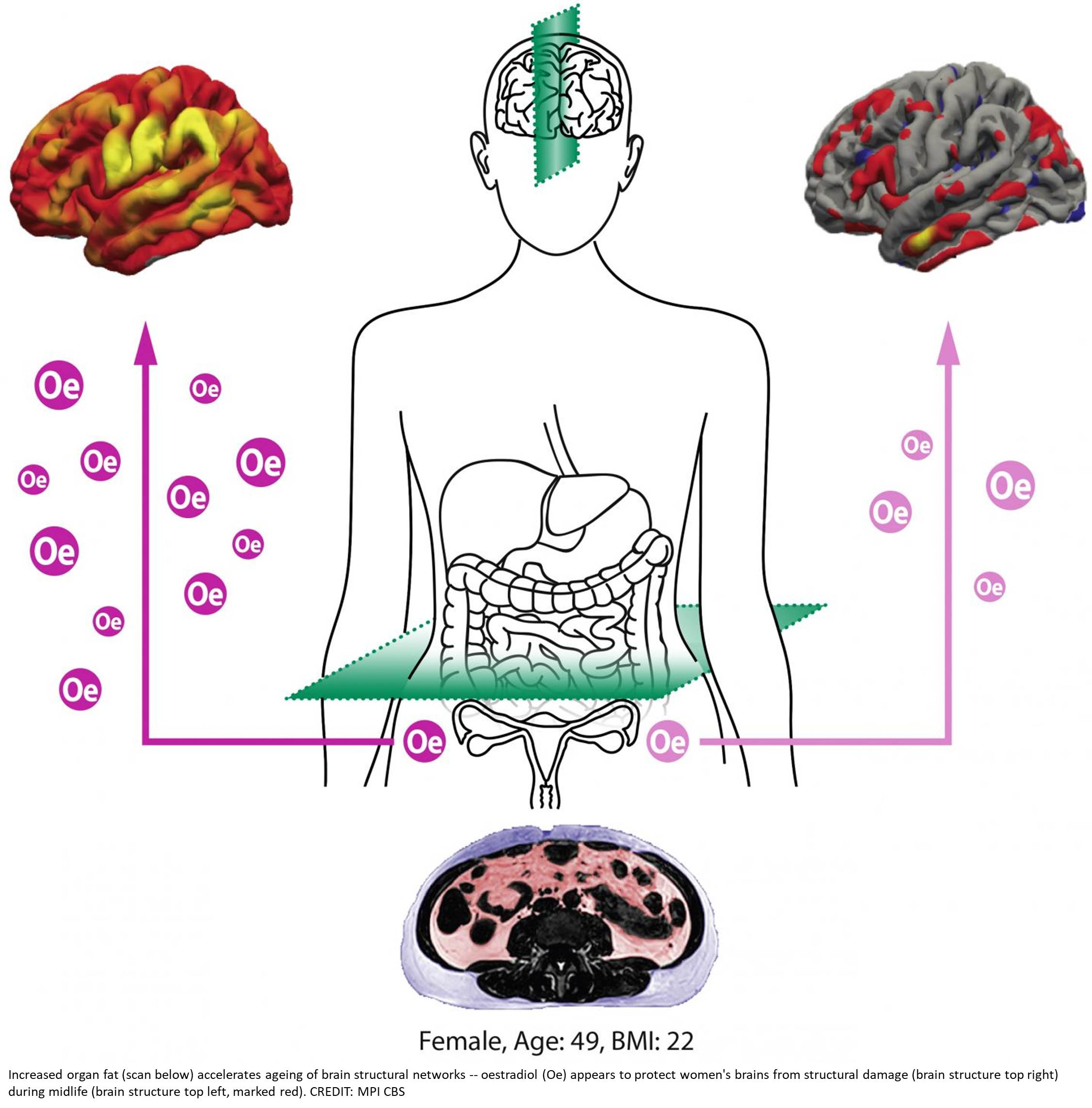 Sexual hormone oestradiol protects female brain in mid-life
