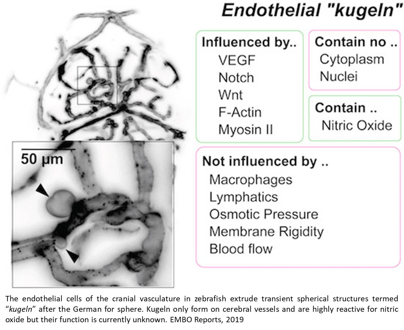 Cerebral blood vessels extrude large transient spherical structures in some form of stroke!