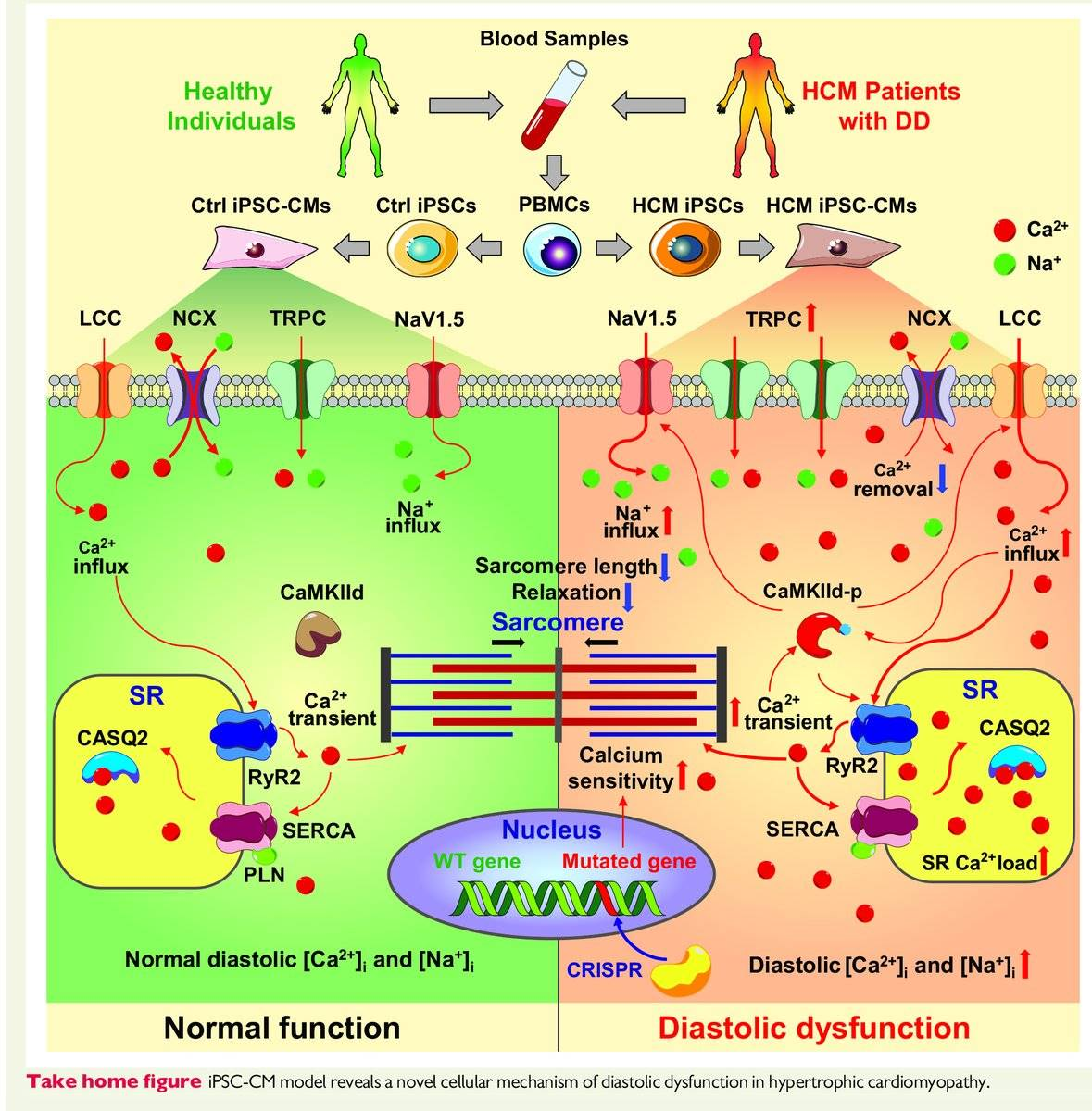 Signaling pathway in deadly cardiomyopathy identified!
