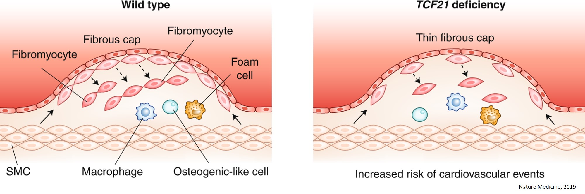 Smooth muscle cells on the artery wall changes identity to protect against rupture in atherosclerosis