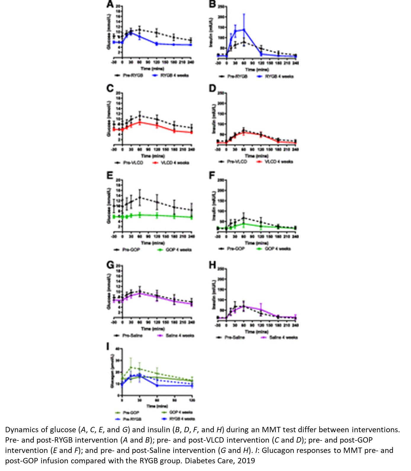 Combined hormone injection aids weight loss in obese patients