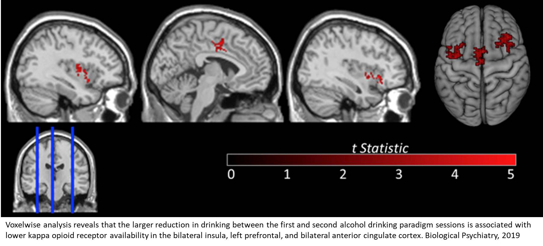 Kappa opioid receptor is associated with naltrexone-induced reduced drinking alcohol and craving