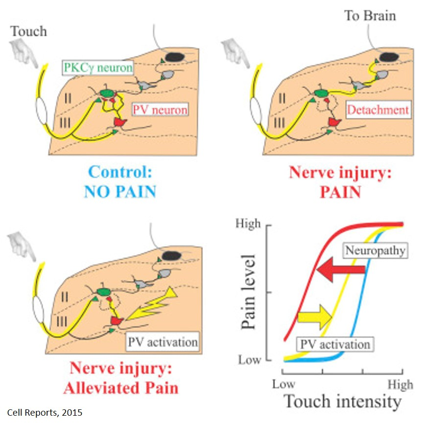 Neurons involved in touch-evoked pain after nerve injury identified