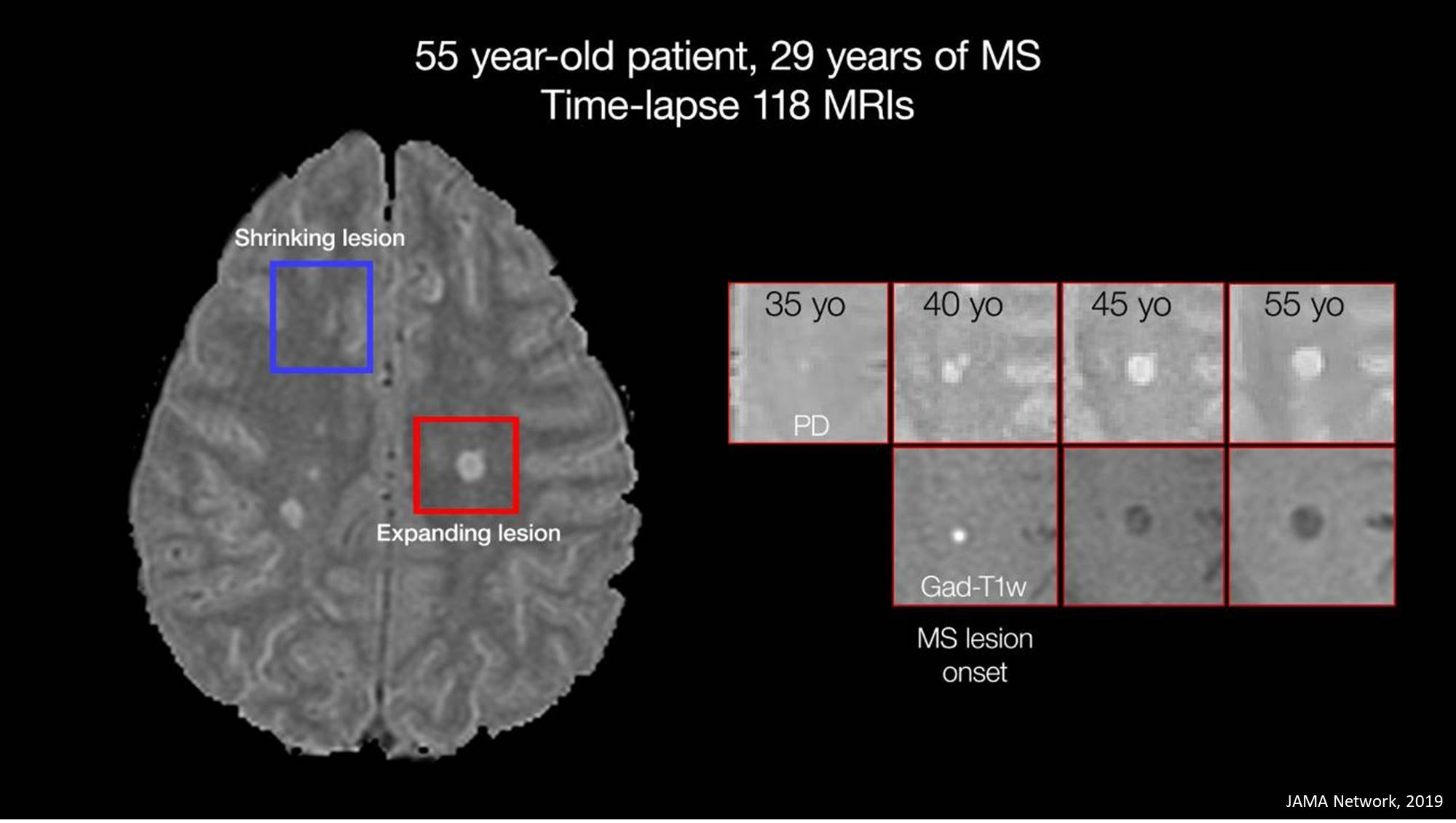 Smoldering spots in the brain may signal severe MS