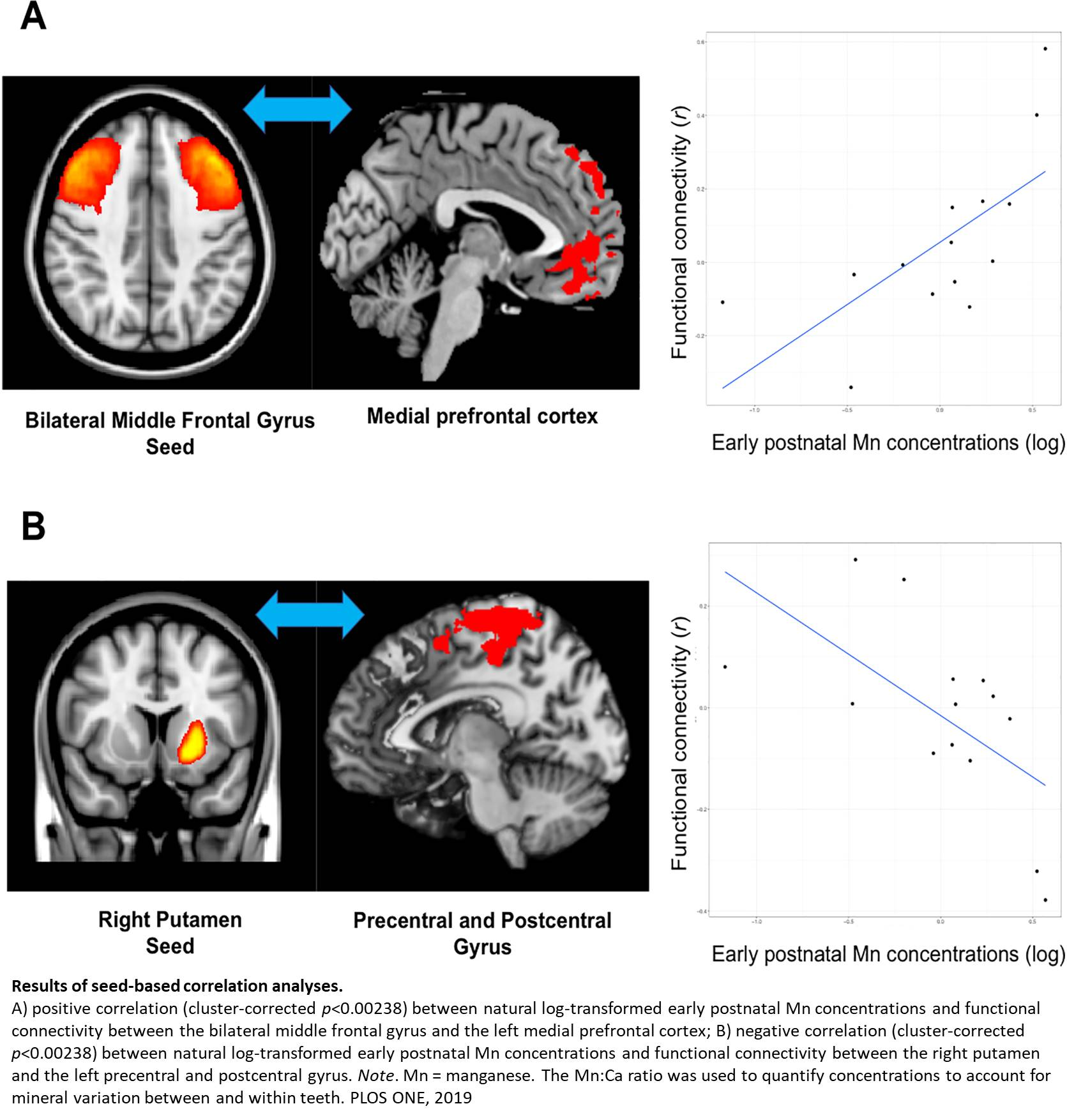 Teen's exposure to manganese early could affect cognitive ability and motor control