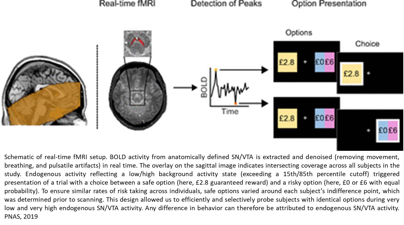 Spontaneous brain fluctuations influence risk-taking