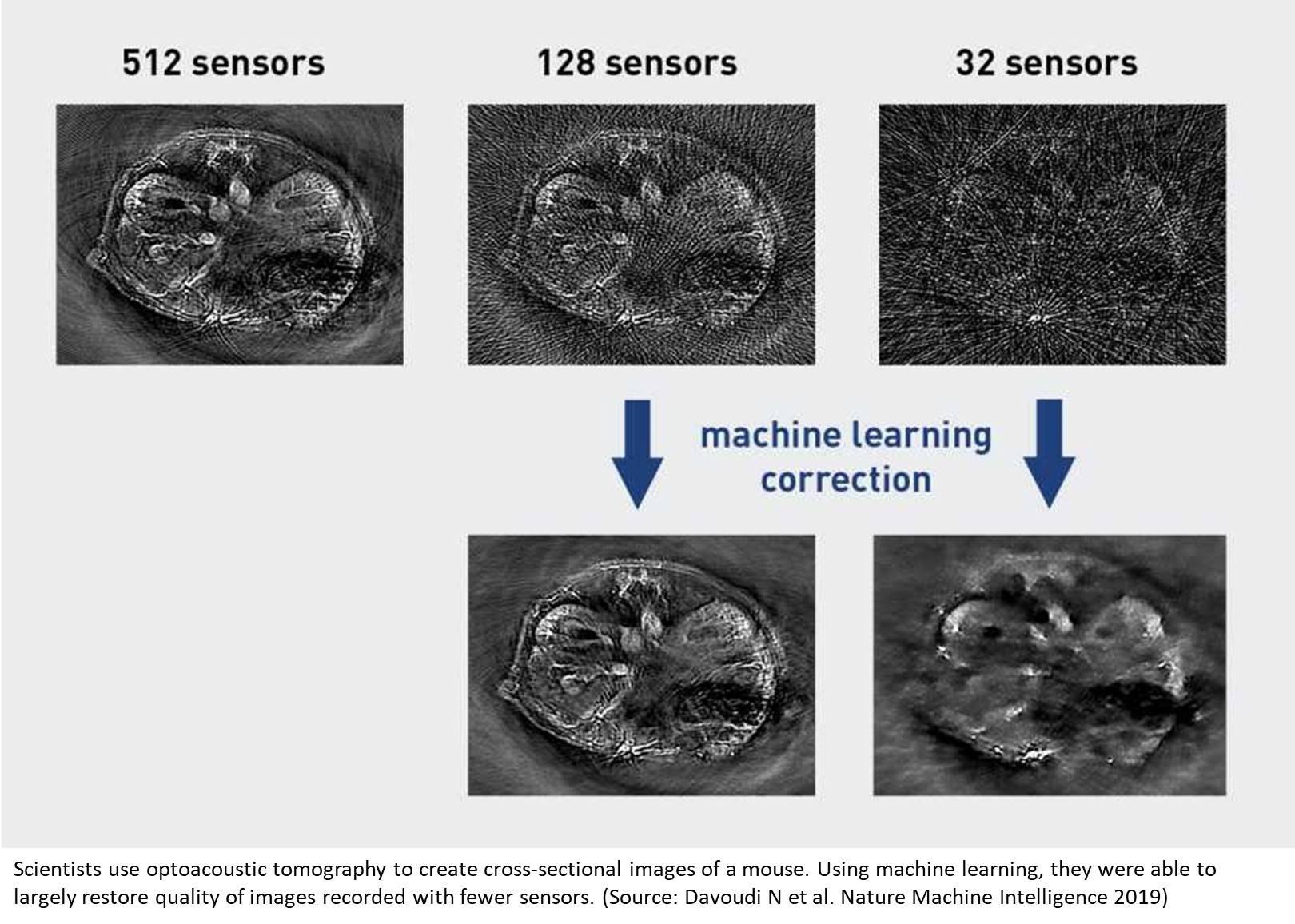 Improving biomedical imaging with artificial intelligence