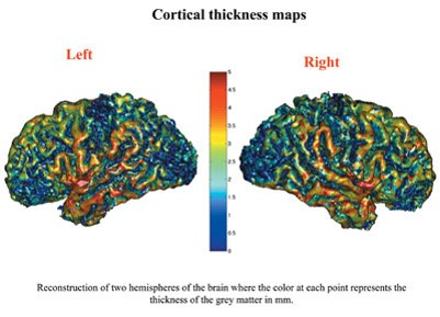 Genetics plays a role in later life cerebral cortex thickness