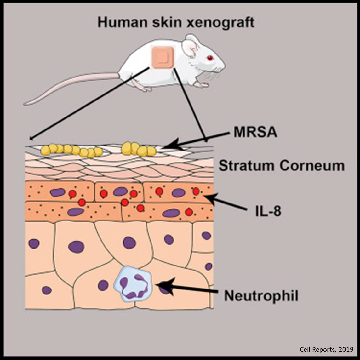 Immune cells in skin kill MRSA bacteria before they enter the body