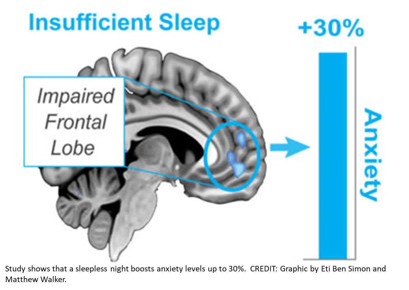 A sleepless night significantly increases emotional stress levels