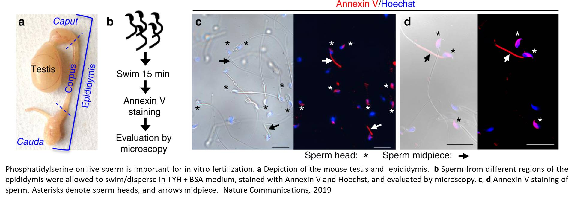 New players in the fertilization may help to address infertility
