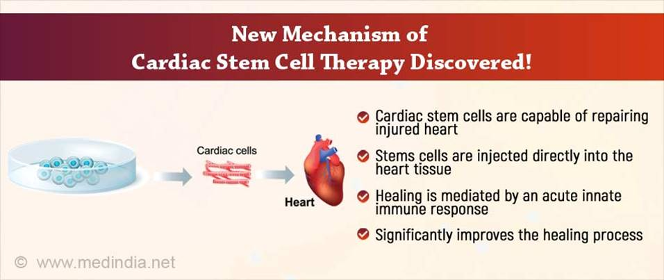New mechanism of cardiac stem cell therapy!