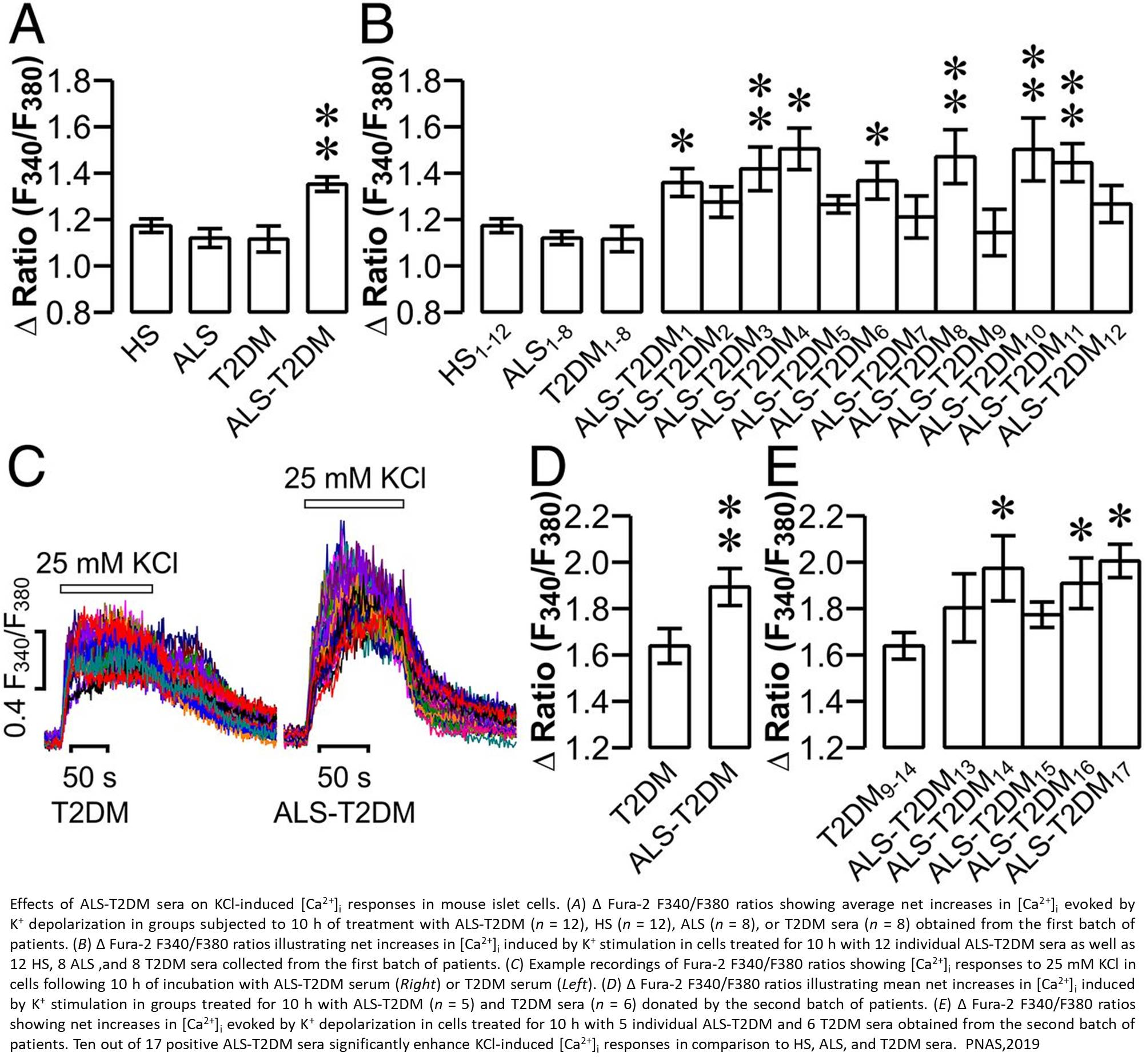 Auto-antibodies from ALS may be responsible type 2 diabetes in patients
