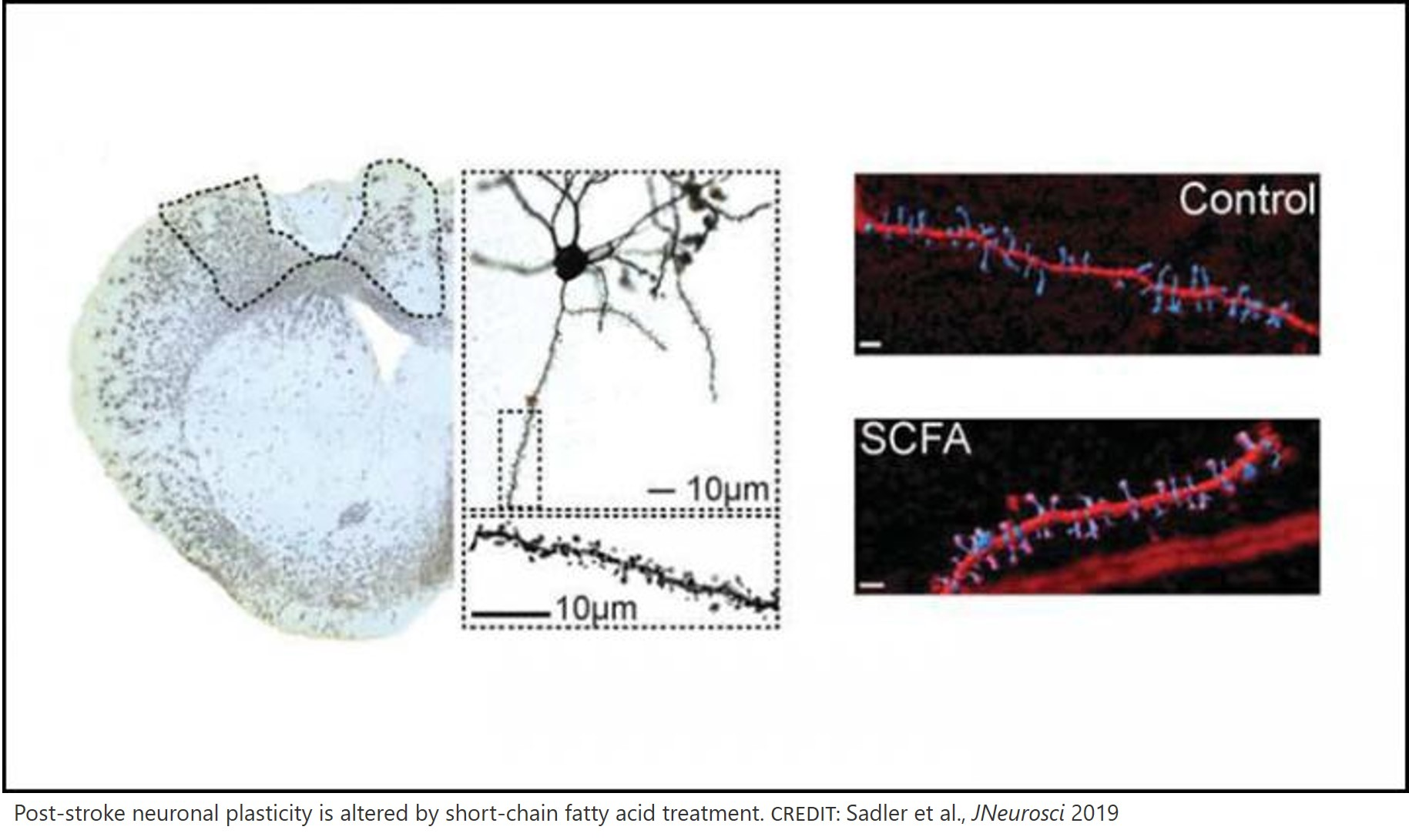 Improving stroke recovery using microbial by-products