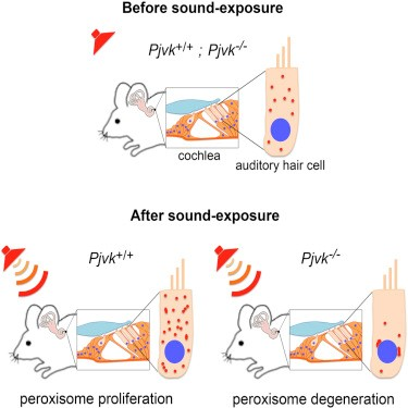 Mechanism of noise-induced hearing loss